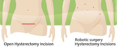 hysterectomy robotic incisions