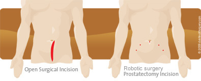 prostatectomy robotic incisions
